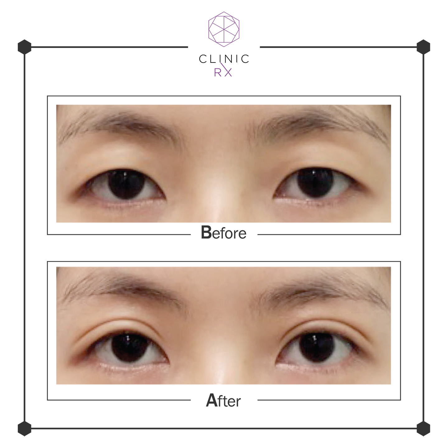 Double Eyelid Suture | Clinic RX